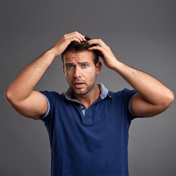 Erkek Tipi Sac Dokulmesi Nedir Hdc Protez Sac Merkezi
